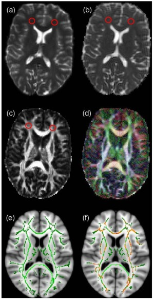brainsci-04-00405-g001
